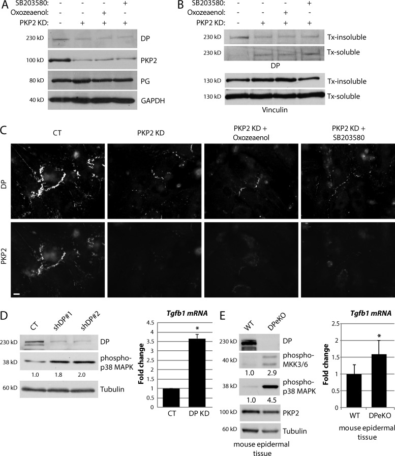 Activation of TGF-β1/p38 MAPK signaling in cardiac cells is regulated by DP expression. (A–C). Control (CT), PKP2 KD, and PKP2 KD CMs treated with either the TAK1 inhibitor (5Z)-7-oxozeaenol or p38 MAPK inhibitor SB203580 were analyzed for total protein levels of DP (A), solubility of DP using Triton X-100 fractionation assays (B), and junctional localization of DP (C). Neither TAK1 nor p38 MAPK inhibition was able to rescue the loss of DP protein expression, increase in DP solubility, or loss of junctional localization of DP, all of which are seen on loss of PKP2 KD in CMs. Bar, 20 µm. (D) Control and DP KD cells were analyzed for levels of phospho–p38 MAPK and Tgfb1 mRNA, both of which were up-regulated on loss of DP expression. (E) Tissue samples from wild-type (WT) and DP epidermal knockout (DPeKO) mice were processed for protein and RNA analysis. Loss of DP expression resulted in activation of phospho–p38 MAPK and an increase in Tgfb1 mRNA in the epidermis. For all graphs, fold change values from three or more independent samples are represented with error bars indicating SD. *, P