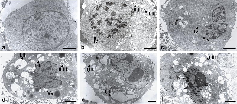 The detection of autophagy using transmission electron microscope. The A549 cells were treated with 10 µM fisetin (FIS) and/or 0.1 µM paclitaxel (PTX) for 24 h or left untreated (control, CTRL). Arrowheads indicate: ( I ) empty autophagic-like vacuoles; ( II ) autophagic-like vacuoles filled with the amorphous materials, the membranous inclusions or the organelles at the various stages of degradation; ( III ) single-membrane vacuoles (autolysosome-like structures); ( IV ) the swollen mitochondria with distorted or disorganized cristae; ( V ) large lysosome-like structure with electron-dense material. Representative micrographs of two independent experiments. Bar 2 µm