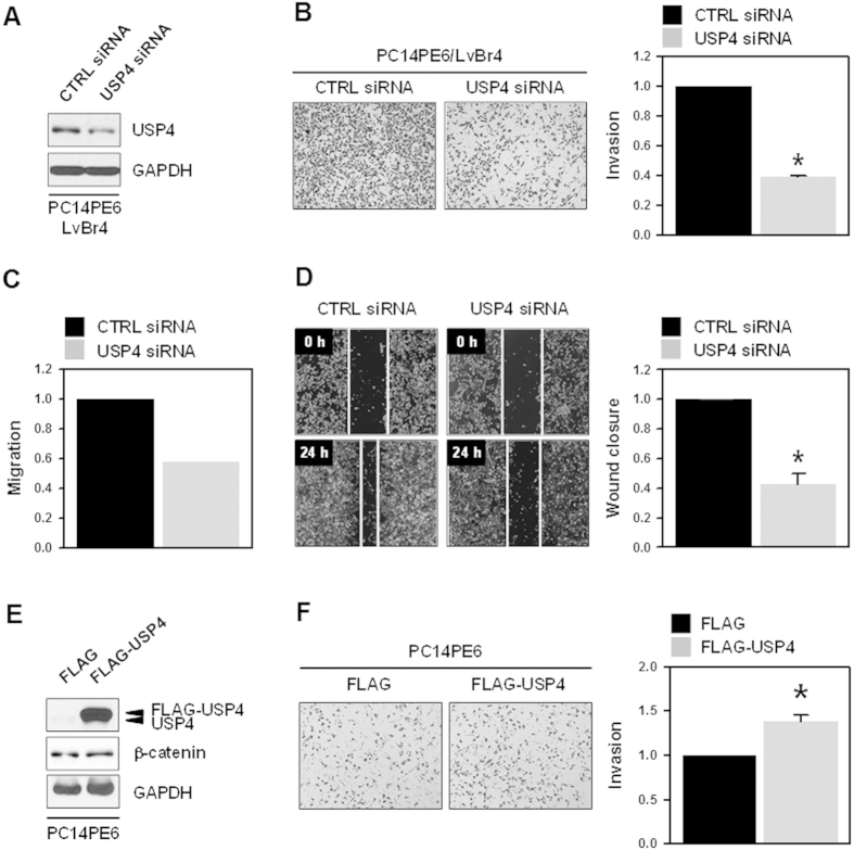 Knockdown of USP4 inhibited metastatic potential of brain metastatic PC14PE6/LvBr4 cells. ( A ) To assess the function of USP4 in metastatic potential, PC14PE6/LvBr4 cells were transfected with control (CTRL) or USP4-specific siRNA for 48 h. The expression level of USP4 was determined by western blotting. ( B–D ) Metastatic potential including invasion ( B ) and migration ( C : Transwell, D : wound closure) was determined as described in the Materials and Methods. ( E,F ) To check whether USP4 overexpression upregulates β-catenin expression and increases invasiveness, PC14PE6 cells were transfected with blank (FLAG) or USP4-overexpressing vector (FLAG-USP4). The level of USP4 and β-catenin was determined by Western blot ( E ) and invasiveness was assessed using a Matrigel Invasion Chamber ( F ). Data are means and standard deviation from more than three independent experiments. * p