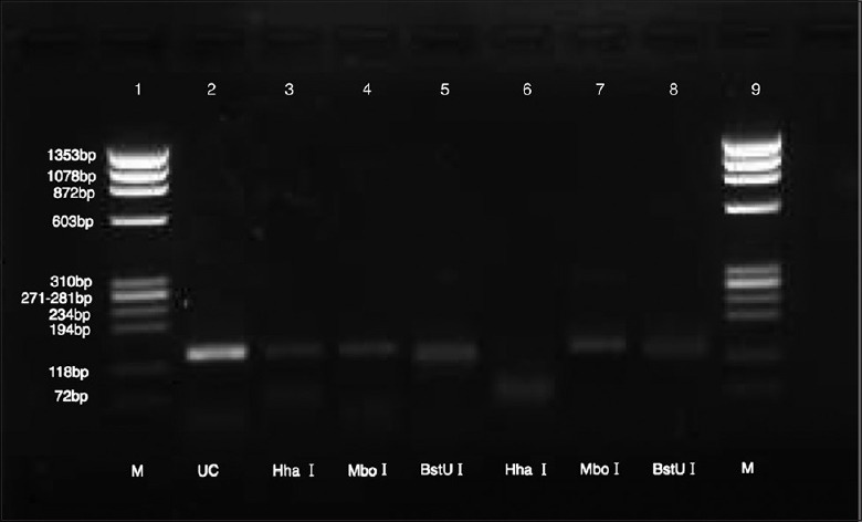 The pattern of Mycobacterium leprae by polymerase chain reaction (PCR)-restriction fragment length polymorphism analysis. Lane 3, lane 4, and lane 5: The nested PCR product of M. leprae sample showed the bands of 130 bp, 130 bp, and 120 bp after <t>Hha</t> I , Mbo I , and <t>BstU</t> I digestion, versus 75 + 65 bp, 130 bp, and 120 bp (lane 6, lane 7, and lane 8) from bacillus Calmette–Guérin; lane 1 and lane 9: Φ174 bp ladder DNA marker (Biolabs, New England); lane 2: The nest-PCR product.