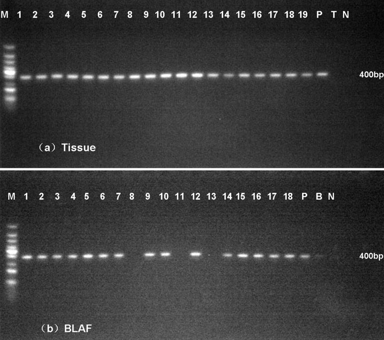 Nested PCR assays in fresh lung tissues (a) and BALF (b). A 400-bp specific product was amplified in most of samples. M: 100-bp-ladder DNA, P, purified genomic DNA from T . marneffei , T, lung tissue from healthy mice, B, BALF from healthy mice, N, water.