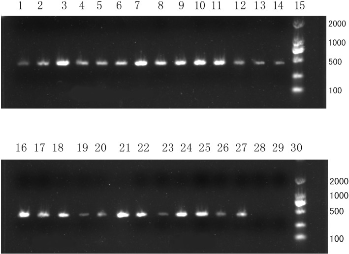 PCR amplification of the vrrA gene among clinical B . cereus isolates. Lane1-14: Bc1-Bc14; lane16-25: Bc16-Bc25; Lane26: B . cereus ATCC14579; Lane27: B . thuringiensis CTCC22945; Lane28: Bacillus subtilis ATCC9372; Lane29: ddH2O; Lane15 and Lane30: DNA marker. The predicted size of the product was approximately 430bp. A total of twenty–four B . cereus strains were confirmed by the PCR, and non- B . cereus strains did not yield a PCR product.
