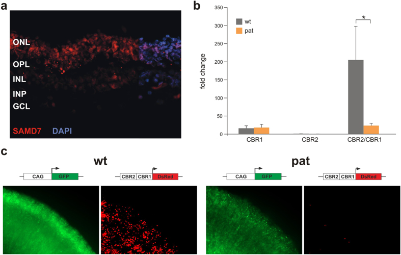 Retinal immunostaining of SAMD7 and transcriptional activity of SAMD7 variants. ( a ) Human retinal SAMD7 localization. Representative fluorescent images of horizontal cross-sections of human retina stained with anti-SAMD7 antibody (red, 1:250). Retinal counterstaining was performed with 4′,6-diamidino-2-phenylindole (DAPI) (blue). SAMD7 immunoreactivity is predominantly detected in the photoreceptor nuclei, located in the ONL. ONL, outer nuclear layer; OPL, outer plexiform layer; INL, inner nuclear layer; IPL, inner plexiform layer; GCL, ganglion cell layer. ( b ) Luciferase experiments. Luciferase assays were performed in HEK cells, using different SAMD7 reporter constructs. The first construct consisted of CBR1 cloned in the pGL4.10 reporter vector containing a luciferase expressing gene without promoter. For the second construct CBR2 was cloned in the pGL3 promoter vector, upstream of a luciferase reporter gene and a minimal basal promoter. Finally, the third construct was obtained by cloning CBR2 upstream of CBR1 in the pGL4.10 vector. Two types of each construct were created, one containing the wt sequence of a healthy control, the other one consisting of the patient (pat) sequences containing the SAMD7 CBR variants. Cis -regulatory activity could be demonstrated for the CBR1 constructs, while for CBR2 only very little luciferase expression could be measured. In both cases, no significant difference in luciferase expression has been observed between patient and control. However, when combining CBR2 and CBR1, luciferase expression increases for the control construct, while for the patient construct there is a significant decrease in expression. *corresponds with p