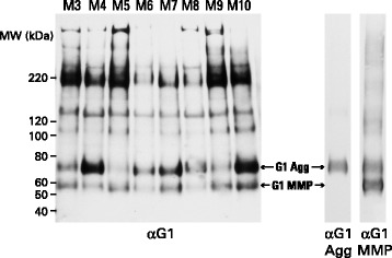 SDS-PAGE and immunoblotting of aggrecan from different individuals. Proteoglycan from guanidine extracts of OA articular cartilage, treated with keratanase and chondroitinase ABC, were analyzed by electrophoresis on polyacrylamide gels, and the fractionated proteoglycan then transferred to nitrocellulose membranes. Aggrecan was visualized by immunoblotting using an antibody recognizing the G1 region. Cartilage samples were obtained midway between the lesion and the joint margin from the femoral condyles and representative samples from eight individuals (M3-M10) are shown. Molecular weights of reference proteins are indicated at the left hand side of the blot. The migration positions of G1 generated by MMP action (G1-MMP) or aggrecanase action (G1-Agg) were determined using anti-neoepitope antibodies specific for their C-terminal peptide sequences (αG1 MMP and αG1 Agg, respectively). αG1MMP shows both terminal neoepitope and some internal sequence recognition