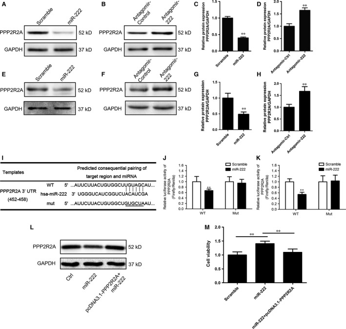 miR‐222 directly targets protein phosphatase 2A subunit B in bladder cancer cells. ( A – H ) The expression of protein phosphatase 2A subunit B ( PPP 2R2A) in T24 ( A – D ) and 5637 ( E – H ) cells transfected with the miR‐222 mimics ( A and E ) or antagomir ( B and F ). The relative expression of PPP 2R2A was normalized to GAPDH ( C , D , G and H ). ( I ) PPP 2R2A is predicted to be a potential target gene of miR‐222 by Targetscan. The miR‐222 binding sites in the wild‐type ( WT ) and mutated (mut) PPP 2R2A 3′ UTR sequences are shown. ( J and K ) The WT and Mut 3′ UTR of PPP 2R2A were cloned into pMIR ‐ REPORT vectors and cotransfected into T24 ( J ) and 5637 ( K ) cells with pRL ‐ TK and the miR‐222 mimics or scrambled RNA . The relative luciferase activity was measured and normalized to that of Renilla luciferase. ( L and M ) T24 cells were transfected as indicated and CCK ‐8 assays were performed ( M ). The expression of PPP 2R2A in each group is shown ( L ). Values are expressed as the means ± S.D.; ** P
