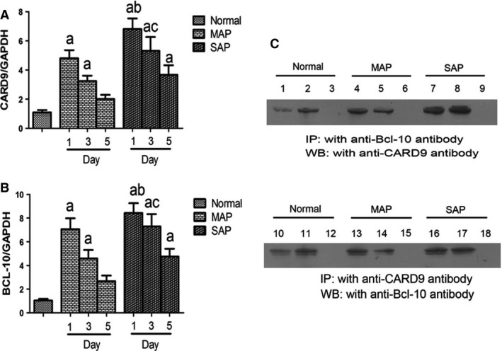 Immunoprecipitation analysis and mRNA levels in PBMC s. ( A ) Card9m RNA expression; ( B ) Bcl10 mRNA expression; ( C ) immunoprecipitation of Card9‐Bcl10 complex (input: 1, 4, 7, 10, 13, 16; anti‐Bcl‐10 immunoprecipitated complex: 2, 5, 8; anti‐Card9 immunoprecipitated complex: 11, 14, 17; lank control: 3, 6, 9, 12, 15, 18). Immunoprecipitation analysis was representative from 20 healthy volunteers, 35 MAP and 17 SAP patients. PCR results were means ± S.D. of measurement on day 1, 3 and 5 (n controlled group = 20, n MAP patients = 17, n SAP patients = 35). a: control versus SAP . MAP , P