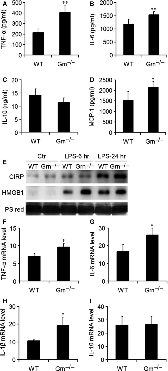 PGRN deficiency increased the production of systemic and local pro‐inflammatory mediators after injection of LPS . ELISA of serum levels of inflammatory mediators including tumour necrosis factor α ( TNF ‐α) ( A ), interleukin 6 ( IL ‐6) ( B ), IL ‐10 ( C ) and monocyte chemoattractant protein 1 ( MCP ‐1) ( D ). ( E ) Western blot analysis of cold‐inducible <t>RNA</t> ‐binding protein ( CIRP ) and high mobility group box protein 1 ( HMGB 1) in the serum from WT and Grn −/− mice with LPS injection at 6 and 24 hrs. PS red, Ponceau S red staining. Real‐time RT ‐ <t>PCR</t> analysis of mRNA levels of TNF ‐α ( F ), IL ‐6 ( G ), IL ‐1β ( H ) and IL ‐10 ( I ) in the lung after LPS injection. Data are mean ± S.D. * P