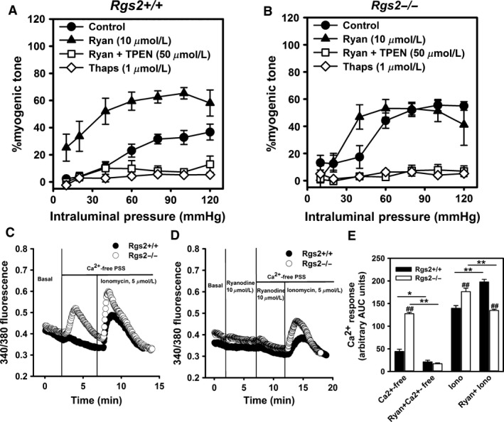 Increased Ca 2+ release from internal stores mediates augmented myogenic tone in RGS 2 deficient mice. (A B) Myogenic response of uterine arteries from wild type ( Rgs2+/+ ) and Rgs2 knockout ( Rgs2−/− ) mice in the absence and presence of ryanodine (Ryan, closed triangles), thapsigargin (Thaps, open diamonds), or Ryan plus N,N,N′,N′‐tetrakis(2‐pyridylmethyl)ethane‐1,2‐diamine (Ryan + TPEN , open squares). Thaps and Ryan + TPEN almost completely blocked myogenic response in both genotypes. (C) Depletion of extracellular Ca 2+ with Ca 2+ ‐free PSS induces robust Ca 2+ release from internal stores in uterine artery smooth muscle cells ( SMC s) from Rgs2 knockout ( Rgs2−/− , open circles) relative and wild‐type ( Rgs2+/+ , closed circles) mice. Ionomycin induces Ca 2+ release from internal stores in SMC s from both genotypes. (D) Ca 2+ ‐free PSS but not ionomycin‐induced Ca 2+ release from internal stores is almost completely abolished by Ryan in SMC s from Rgs2−/− mice. (E) A plot of area under the curve ( AUC ) of fura‐2 fluorescence shown in C and D. Note the augmentation of ionomycin‐induced Ca 2+ response by Ryan in Rgs2+/+ SMC s, which correlates with enhanced myogenic response in Rgs2+/+ uterine arteries in the presence of Ryan in A. Values are mean ± SE. * , ** P