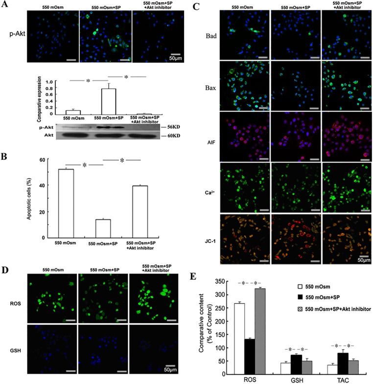 Role of Akt reactivation in the anti-apoptotic effects of SP. Mouse corneal epithelial cells were treated with 40 μM Akt inhibitor V and 1 μM SP 2 h before the addition of glucose for 24 h. The phosphorylation of Akt was evaluated by Immunofluorescence staining or Western blot (A). The apoptosis was evaluated by FACS analysis followed by FITC-Annexin V/PI staining (B), and the detection of Bad, Bax, AIF, Ca 2+ and mitochondrial membrane potential (C). The intracellular ROS and glutathione (GSH) were detected by staining with the fluorescence probes (D) and measured by the fluorescence intensity (E). The cellular total antioxidant capacity (TAC) was measured by the ABTS assay (E).