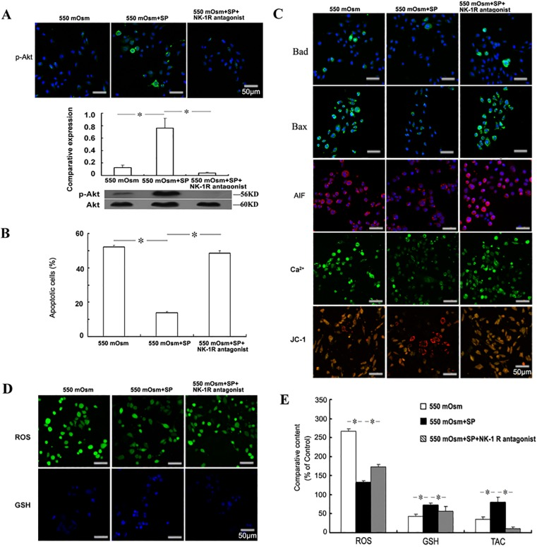 Role of NK-1 receptor in the anti-apoptotic effects of SP. Mouse corneal epithelial cells were treated with 1 μM NK-1 receptor antagonist L-733,060 with 1 μM SP 2 h before the addition of glucose for 24 h. The phosphorylation of Akt was evaluated by Immunofluorescence staining or Western blot (A). The apoptosis was evaluated by FACS analysis followed by FITC-Annexin V/PI staining (B), and the detection of Bad, Bax, AIF, Ca 2+ and mitochondrial membrane potential (C). The intracellular ROS and glutathione (GSH) were detected by staining with the fluorescence probes (D) and measured by the fluorescence intensity (E). The cellular total antioxidant capacity (TAC) was measured by the ABTS assay (E).