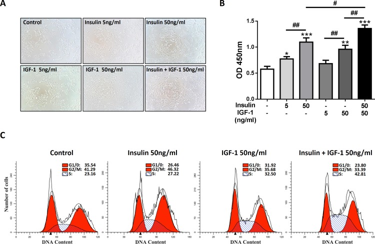 Insulin/IGF-1 promotes colon cancer cells proliferation and cell cycle progression in vitro . MC38 cells were cultured with various concentrations of insulin and IGF-1 for 72 hours. Control groups were treated with PBS. (A) Cell morphology was observed. (B) Cells were harvested for proliferation analysis with CCK-8 assay. *P