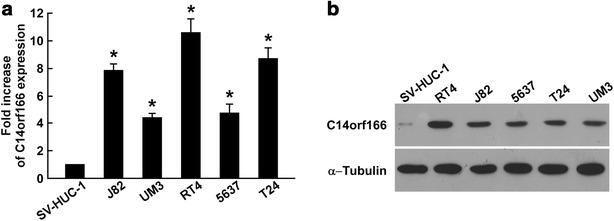 C14orf166 upregulation in human bladder cancer cell lines. a Quantitative RT-PCR determination of C14orf166 expression in immortalized human bladder epithelial SV-HUC-1 cells and bladder cancer J82, UM3, RT4, 5637, and T24 cells. Transcription levels were normalized to GAPDH expression. b Western blot determination of C14orf166 expression in SV-HUC-1, J82, UM3, RT4, 5637, and T24 cells. α-Tubulin was used as the loading control. * P