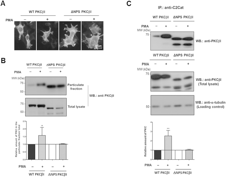 Anti-C2Cat antibodies immunoprecipitate more cPKC upon activation with PMA. ( A ) HEK293T cells were transfected with either WTPKCβΙ or ΔNPSPKCβΙ and treated with 100 nM PMA for 15 minutes. Fixed cells were then incubated with anti-PKCβΙ V5 domain antibodies and subsequently with anti-rabbit antibodies labeled with Alexa 555. ( B ) To evaluate the amount of active (membrane bound) PKCβΙ in HEK293T transfected cells. Cells treated or non-treated with 100 nM PMA were fractionated and probed for PKCβΙ in the particulate fraction by Western blot with anti-PKCβΙ-V5. ( C ) Transfected HEK293T cells were treated with 100 nM PMA and control cells were immunoprecipated with anti-C2Cat antibodies and probed for PKCβΙ with anti-PKCβΙ-V5 (upper panel). Total lysates were probed with anti-PKCβΙ to evaluate transfection levels, and for α-tubulin to evaluate the total amount of protein loaded. A representative blot of n = 3 is shown for ( B , C ). Quantitative analysis of the average of three independent experiments is shown normalized to non-treated cells, which was set to 1. Statistical significance was determine by ANOVA-Bonferroni test where **p