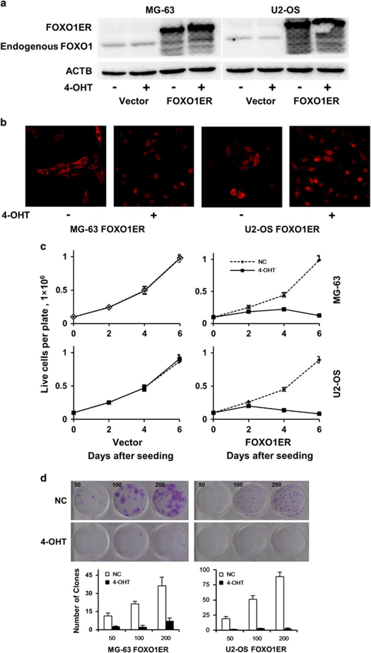 FOXO1 inhibits growth of osteosarcoma cell lines and suppresses colony formation capacity. ( a ) Expression of FOXO1ER protein in stably infected MG-63 and U2OS cells was validated by immunoblotting using anti-FOXO1 antibody. Anti-ACTB antibody was used as a loading control. ( b ) Induction of nuclear translocation of FOXO1ER by 4-OHT was verified by immunofluorescence analysis. ( c ) Cell lines were plated in six-well plates at a density of 1 × 10 5 cells per well (day 0). 4-OHT was added every two days at a concentration of 100 n M . Cells were counted with a hemocytometer at days 2, 4 and 6. Cell viability was verified by trypan blue staining. ( d ) Representative photographs of colony formation of MG-63-FOXO1ER and U2OS-FOXO1ER cells 12 days after plating; the number of cells plated in each well is also indicated. All experiments were repeated at least three times. Colony formation was quantified and presented as mean±s.d.
