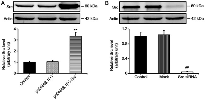 Western blot analysis of Src expression in keratinocytes following transfection. (A) Keratinocytes were transfected with pcDNA3.1(+)-Src for overexpressing Src and (B) Src-siRNA was used for silencing Src. Controls used were untransfected cells (control), pcDNA3.1(+) and mock. Mock, cells transfected with scrambled siRNA. Bars represent the means ± SEM; n=4 tissue samples. ** P