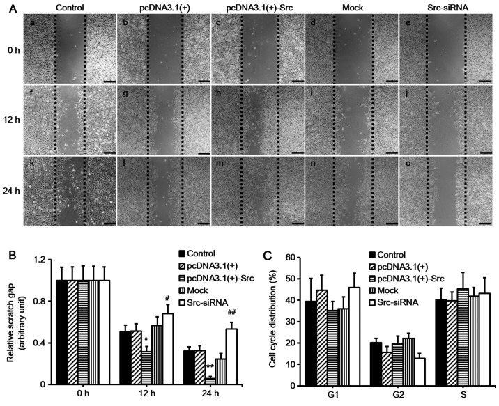 Effect of Src on keratinocyte migration in vitro . (A) Keratinocytes were transfected to overexpress Src [pcDNA3.1(+)-Src] or silence Src expression (Src-siRNA). Following 1 h of mitomycin C treatment, the cells were scratch-wounded with a micropipette tip (200 µ l). Black dotted lines indicate the wound borders at the beginning of the assay and were recorded at 0, 12 and 24 h post-scratching. Scale bar, 100 µ M. (B) Relative scratch gap was calculated as the ratio of the remaining scratch gap at the given time point and the original gap at 0 h. (C) Flow cytometric analysis showing the effect of Src on cell cycle distribution. Numbers of cells at G1, G2 and S phases were counted and the percentage was calculated. Controls used were untransfected cells (control), pcDNA3.1(+) and mock; mock, cells transfected with scrambled siRNA sequence. Bars represent the means ± SEM; n=4 tissue samples. * P