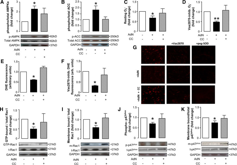 Effects of recombinant adiponectin (AdN) on myocardial redox state in humans. Ex vivo incubation of human myocardium with AdN (10 μg/mL) for 2 h resulted in increased phosphorylation of AMP-kinase (AMPK)-α at Thr172 (p-AMPK; A ) leading to AMPK activation as assessed by the phosphorylation status of its downstream target acetyl-CoA carboxylase (ACC) at Ser79 (p-ACC; B ), an effect reversed by compound C (CC; 10 μmol/L; A and B ). AdN reduced superoxide (O 2 − ) production in human myocardium ( C ) and specifically nicotinamide adenine dinucleotide phosphate (NADPH) oxidase activity, as assessed by measuring the Vas2870-inhibitable (40 μmol/L) O 2 − ( D ); both effects were reversed by CC ( C and D ). These effects of AdN on myocardial O 2 − were also confirmed by dihydroethidium (DHE) staining; AdN reduced both total and Vas2870-inhibitable DHE fluorescence, and these effects were reversed by CC ( E – G ). Importantly, AdN prevented Rac1 activation (assessed by measuring the ratio of GTP-Rac1:total Rac1 [t-Rac1; H ]) and reduced the membrane-bound fraction of Rac1 (m-Rac1; I ); both effects were reversed by CC. Similarly, AdN prevented p47 phox phosphorylation at its activatory site Ser359 (p-p47 phox , J ) and reduced the membrane-bound fraction of nicotinamide adenine dinucleotide phosphate (NADPH) oxidase subunit p47 phox (m-p47 phox ; K ) in an AMPK-dependent manner (as both effects were reversed by CC; J and K ). A and B , AdN: n=7 to 13 per group; CC: 4 to 7 per group; ( C , D , H , J , K ) AdN, n=7 to 12; CC group, n=4 to 6; ( E – I ) n=3 to 4 per group. Values are expressed as fold change vs control group and shown as mean±SEM; * P