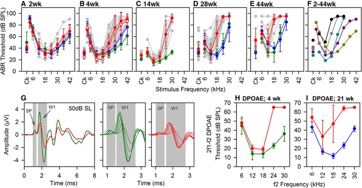 Auditory responses of Wbp2‐deficient mice Mean ABR thresholds (± SD ) for clicks and tone pips are plotted for wt (green), het (blue) and hom (red) mice at ages (A) P14 (wt, n = 3; het, n = 8; hom, n = 6); (B) 4 weeks (wt, n = 38; het, n = 26; hom, n = 37); (C) 14 weeks (wt, n = 10; hom, n = 14); (D) 28 weeks (wt, n = 15; het, n = 5; hom, n = 25); (E) 44 weeks (wt, n = 9; het, n = 2; hom, n = 11). Grey symbols and lines indicate thresholds of individual mutants. In (B), open symbols represent thresholds under urethane anaesthesia (see Materials and Methods ), showing no difference compared with ketamine/xylazine used for all other thresholds. Mean thresholds for mutants aged 2 weeks (yellow), 4 weeks (purple), 14 weeks (cyan), 28 weeks (grey) and 44 weeks (black). Averaged click‐evoked ABR waveforms from 4‐week‐old wt ( n = 23, green) and mutants ( n = 34, red), at 50‐ dB sensation level ( SL ) (left panel). SP and ABR wave 1 (W1) are indicated by grey areas. Expanded averaged SP and ABR W1 waveform patterns for 10‐ to 60‐ dB SL in 10‐ dB increments are plotted in green (wt; middle panel) and red (mutants; right panel), to illustrate the growth of SP and W1 with stimulus level. Mean 2f1‐f2 DPOAE thresholds (± SD ) are plotted for wt (green), heterozygote (blue) and homozygous (red) mice aged 4 weeks (H: wt, n = 5; hom, n = 5) or 21 weeks (I: het, n = 3; hom, n = 5), as a function of f2 frequency.
