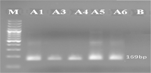 Detection of epsps gene in some samples tested by nested PCR (Results of PCR products of primer pairs (GMO8/GMO7)) M: 100 bp DNA marker, B: negative control, lanes A1–A6: tested samples.