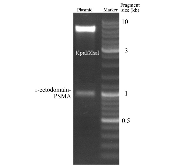 Gel electrophoresis of recombinant plasmid following <t>Kpn</t> I and Xho I double enzymatic digestion. PSMA, prostate-specific membrane antigen.
