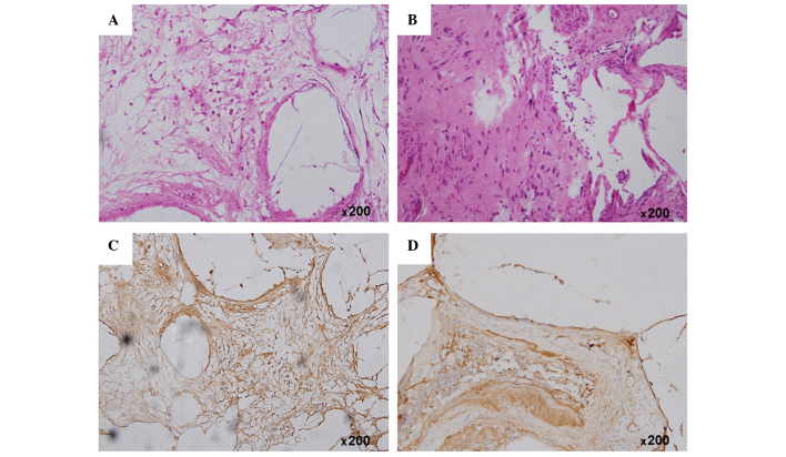 (A and B) Hematoxylin and eosin staining and (C and D) immunohistochemical analysis of osteocalcin protein expression at the mandibular defect area in the (A and C) group 1 and (B and D) group 2 rabbits at 4 weeks post-operation (magnification, ×200). The group 1 and group 2 rabbits received the Bio-ADSCs/Avi-β-TCP and Bio-ADSCs/Avi-β-TCP/PRP constructs, respectively. ADSCs, adipose-derived stem cells; β-TCP, β-tricalcium phosphate; Bio-ADSCs, biotinylated-ADSCs; Avi-β-TCP, avidin-coated β-TCP; PRP, platelet-rich plasma.