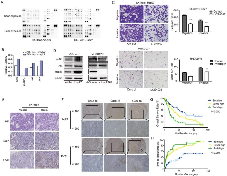 Ectopic expression of Hsp27 leads to increased phosphorylation of Akt. (A-B) Result from phosphokinase arrays suggested that activities of p38α, AMPKα1, Akt, and JNK were increased in SK-Hep1-Hsp27 cells. (C) Migration and matrigel invasion assays were done for SK-Hep1-Hsp27 and MHCC97H cells following treatment with 10 µM LY294002 for 24 h (magnification, ×200). (D) Influence of Hsp27 overexpression or knockdown on the activity of Akt was analyzed by western blotting . (E) Immunohistochemical staining of Hsp27 and p-Akt was performed on serial sections of tumors from SK-Hep1-Hsp27 group and control group (magnification, ×200). (F) Representative images of Hsp27 and p-Akt from three patient samples were shown (magnification, ×100, ×200) (G-H) Prognostic values of Hsp27 combined with p-Akt. ** P
