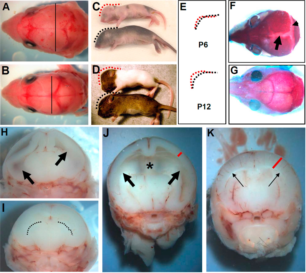 Pax3 flox/flox /Wnt1-Cre conditional knockout mice exhibit congenital hydrocephalus, indicating that restricted loss of Pax3 within both the neural tube andmigratory neural crest is sufficient to cause defects. ( A,B ) Dorsal view of postnatal (P) day 1 heads in Pax3 flox/flox /Wnt1-Cre ( A ) and control ( B ) littermates. Lines drawn at similar anatomical planes measure the width of the heads, showing mild enlargement in mutants ( A ); ( C,D ) Lateral view of P6 ( C ) and P12 ( D ) Pax3 flox/flox /Wnt1-Cre (top) and control (bottom) littermates. Note the generalized pigmentation defect in mutants; ( E ) Dashed lines from C,D illustrate the domed (red) mutant cranium; ( F,G ) Dorsal view of skeletal preparation of P20 Pax3 flox/flox /Wnt1-Cre ( F ) and control ( G ) heads; Note sagittal (arrowhead) and transverse (arrow) suture fusion defects in only the mutants ( F ); ( H,I ) Transverse views of P1 heads from animals in ( A,B ); significant dilation of lateral ventricle (arrows) is already present in Pax3 flox/flox /Wnt1-Cre mutants ( H ); dashed lines in control ( I ) indicate normal lateral ventricles; ( J,K ) Transverse view of P6 heads. Further dilation of lateral ventricles (large arrows) and loss of interventricular tissue (asterisk) is present in Pax3 flox/flox /Wnt1-Cre mutants ( J ). As a consequence of expansion of mutant lateral ventricle, a thinned cortex (red line) also results.