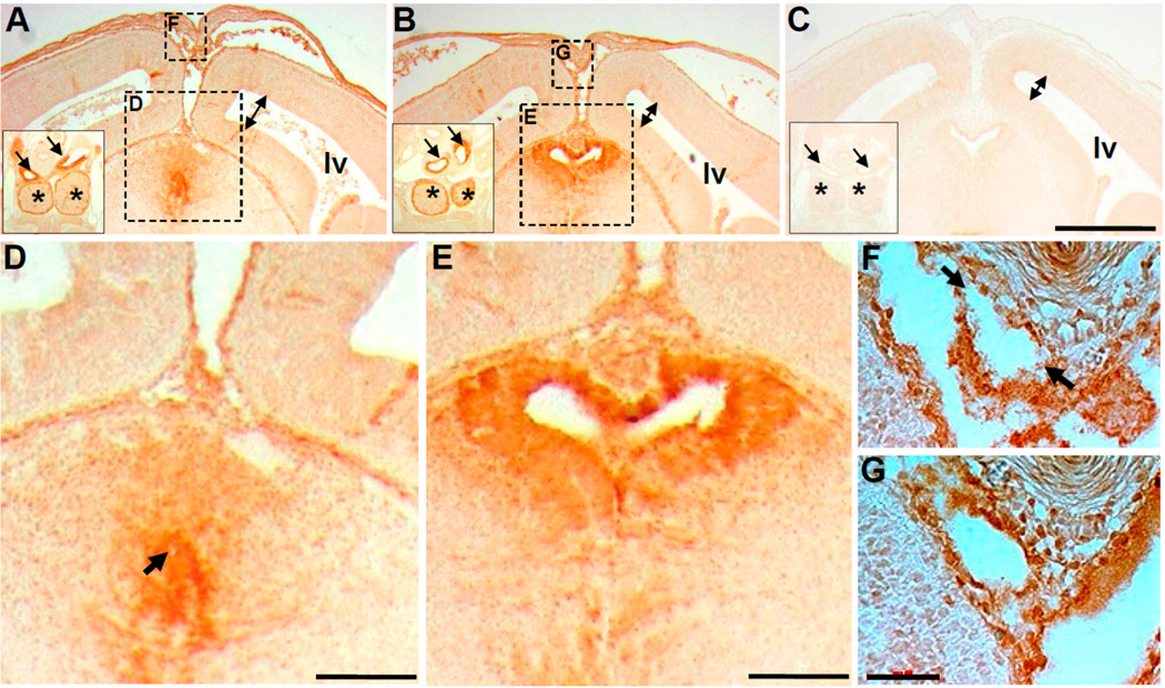 Lineage mapping reveals restricted loss of Pax3 results in abnormal opening to the brain third ventricle. ( A–E ) Coronal sections of E14.5 of Pax3 flox/flox /Wnt1-Cre; R26r mutant ( A,D ), Wnt1-Cre/R26r control ( B,E ) and Pax3 flox/flox /R26r control ( C ) littermates following β-galactosidase (brown) immunohistochemistry to unequivocally detect lacZ expression. The Wnt1-Cre -negative sample ( C ) serves as a negative control. Significantly, the epithelium lining the control third ventricle and subcommissural organ is specifically labeled ( B ), whereas in the mutant ( A ), although a group of cells is positively labeled, they failed to form a normal tubular structure in the mutant. Enlarged views from A,B (indicated via large dotted line boxed areas labeled D,E ) reveal lacZ -expressing elongated columnar epithelial cells surrounding a clear opening in control ( E ) but lacZ -expressing mutant cells fail to establish the normal opening to the third ventricle (arrow in D ). Additionally, double-headed arrows indicate the space in the lateral ventricles in all three genotypes, revealing a mild dilation of lateral ventricles in only the mutant ( A ). Inserts in A,B (solid line boxes) show a similar pattern of typical Wnt1-Cre/R26r expressing cells in both mutant and control great arteries (arrows) and thymus (asterisk), from more posterior sections adjacent to the outflow tract of the heart. ( F,G ) High-power view from small dotted line boxed areas in A,B , demonstrating that the superior sagittal sinus (SSS) and surrounding tissue are positively labeled for Wnt1-Cre/R26r lineage. Note however that the circumferential labeling pattern seen in control ( G ) is discontinuous in the mutant (arrows, F ). Scale bars: A–C = 400 µm; D,E = 130 µm; F,G = 50 µm.