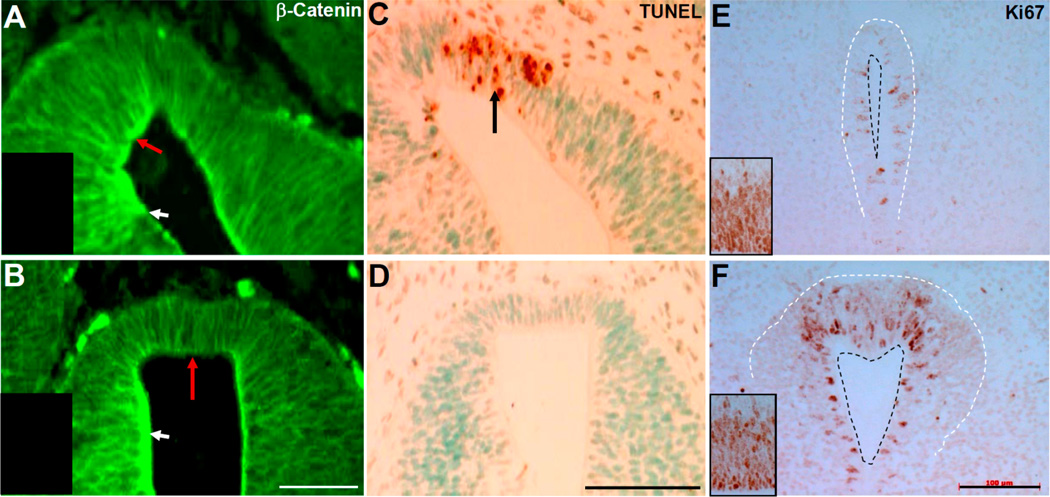 Marker analysis of anterior third ventricle morphogenesis. ( A,B ) Immunofluorescence detection of β-catenin expression in Pax3 flox/flox /Wnt1-Cre mutants ( A ) compared to control ( B ) E12.5 embryos. Red arrows point to the apical pole of the anterior side of third ventricles, revealing robust β-catenin in mutants but not control. However, β-Catenin expression is equally present in control and mutant lateral walls (white arrows). Inserts are negative controls, illustrating lack of autofluorescence; ( C,D ) TUNEL assay shows ectopic apoptosis in anterior wall of third ventricle in Pax3 flox/flox /Wnt1-Cre mutants (arrow, C ) but none in control; ( E,F ) Ki67 immunohistochemical analysis of reduced cell proliferation in Pax3 flox/flox /Wnt1-Cre mutants ( E ) compared to control ( F ) E12.5 embryos. Black dashed lines indicate the ventricular lumen and the white lines indicate the pseudostratified epithelium. Inserts from E12.5 lateral ventricles, exhibiting similar Ki67 labeling index in Pax3 flox/flox /Wnt1-Cre mutants ( E ) and control ( F ). Scale bars: A,B = 50 µm; C–F = 100 µm.