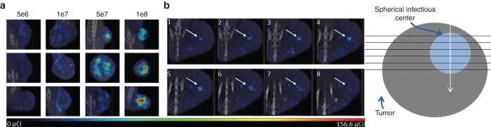 High-resolution microSPECT/computed tomography (CT) imaging is able to distinguish individual centers of radiotracer uptake. ( a ) Single planes from microSPECT/CT imaging of three different tumor-bearing mice 24 hours after intratumoral vesicular stomatitis virus (VSV)-mIFNβ-NIS infection at doses 5 × 10 6 through 1 × 10 8 TCID 50 . The microSPECT/CT imaging is able to discern individual foci of radiotracer uptake. The distribution and density of the individual foci is dependent on virus dose although variability across mice given the same treatment is seen. ( b ) Serial planes along a single axis through the tumor of an MPC-11 tumor-bearing immunocompetent BALB/c mouse 24 hours after 5 × 10 6 TCID 50 VSV-mIFNβ-NIS shows increasing and decreasing diameter and intensity of a single radiotracer uptake center indicating approximately spherical geometry. Diagram shows the collection and orientation of serial planes.