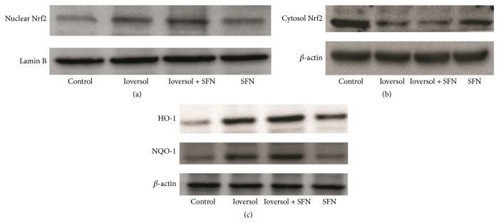 The protein levels in different groups. (a) SFN pretreatment enhanced Nrf2 nuclear translocation. (b) Nrf2 protein levels in the cytoplasm. (c) SFN pretreatment increased NQO-1 and HO-1 protein levels in CIN rats.