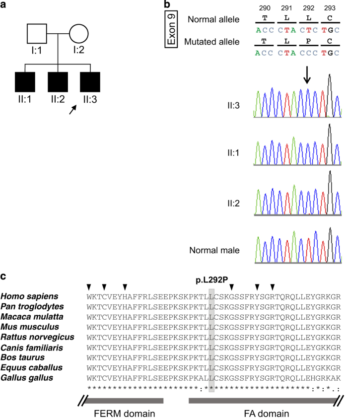 A Japanese family with X-linked congenital nystagmus. ( a ) Pedigree. The squares and circle represent males and female, respectively. Black symbols indicate affected individuals, and unfilled symbols indicate unaffected individuals. Arrow marks the proband. ( b ) DNA sequence chromatograms of the FRMD7 . Affected family members are denoted by II:1, II:2 and II:3. Arrow marks the variant, c.875T > C. ( c ) Cross-species multiple alignment of FRMD7 protein sequences around the pL292P variant site, showing evolutionary conservation of the altered residue in the highly conserved residues of the FERM-adjacent (FA) domain . Amino-acid sequence comparison in several related proteins using ClustalW2 ( http://www.ebi.ac.uk/Tools/msa/clustalw2/ ). The nine proteins depicted are from human, Pan troglodytes , Macaca mulatta , Mus musculus , Rattus norvegicus , Canis familiaris , Bos taurus , Equus caballus and Gallus gallus. The FRMD7 variant, p.L292P, is indicated above the aligned sequence, with the amino acid shaded in the alignment. Arrow heads indicate residues reported to be causative mutations around codon 292 in cases with XLICN. 14–20 Gray bars indicate regions of the FERM and FA domains.