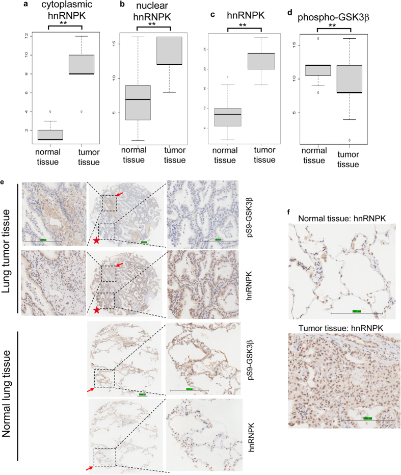 hnRNPK expression negatively correlates with Ser9 phosphorylated GSK3β in tissue microarrays (TMAs). TMAs of lung adenocarcinoma (n = 52) were immunohistochemically scored and statistically analyzed for the cytoplasmic hnRNPK ( a ), nuclear hnRNPK ( b ), total hnRNPK ( c ), and total phospho-GSK3β ( d ). **p