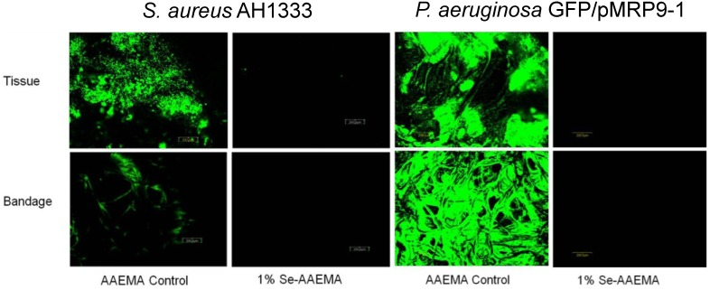 CLSM study of the in vivo inhibition of a S. aureus AH1333 ( A ) and P. aeruginosa GFP/pMRP9-1 ( B ) bacterial biofilm in both the bandage and underlying tissue.