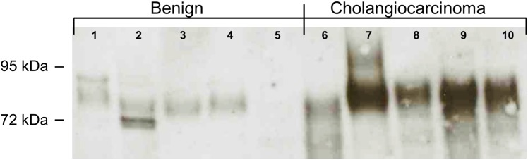 Qualitative Western Blot analysis of bile from patients with benign and malignant disease. The Western Blot analysis utilizes the detection antibody provided in the commercial ELISA kit used in these experiments. The 90kDa CEACAM6 is detected between the 95kDa and 72kDa protein ladder bands.