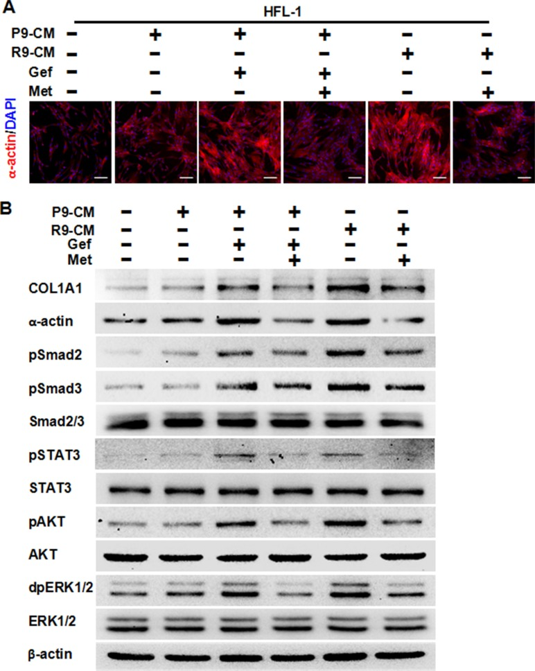Metformin attenuates fibrosis induced by conditioned medium from TKI-treated lung cancer PC-9 cells or conditioned medium from TKI-resistant PC-9GR cells (A) Immunofluorescence staining showed that metformin decreased expression of α-actin in HFL-1 cells either induced by conditioned medium from TKI-treated lung cancer PC-9 cells or conditioned medium from TKI-resistant PC-9GR cells. The nucleus were stained with 4′, 6-diamidino-2-phenylindole in the merged images. Scale bars: 150 μm. (B) Metformin decreased TKI-induced expression of COL1A1 and α-actin, and inhibited TKI-enhanced expression of pSMAD2, pSMAD3, pSTAT3, pAKT, and dpERK1/2, as shown by western blot assay. Whole cell protein lysates from HFL-1 cells with different treatments were immunoblotted with antibodies as indicated, and β-actin was used to confirm equal gel loading. Similar results were obtained in three independent experiments. P9, PC-9 cells; R9, PC-9GR cells; CM, conditioned medium; Gef, gefitinib; Met, metformin.