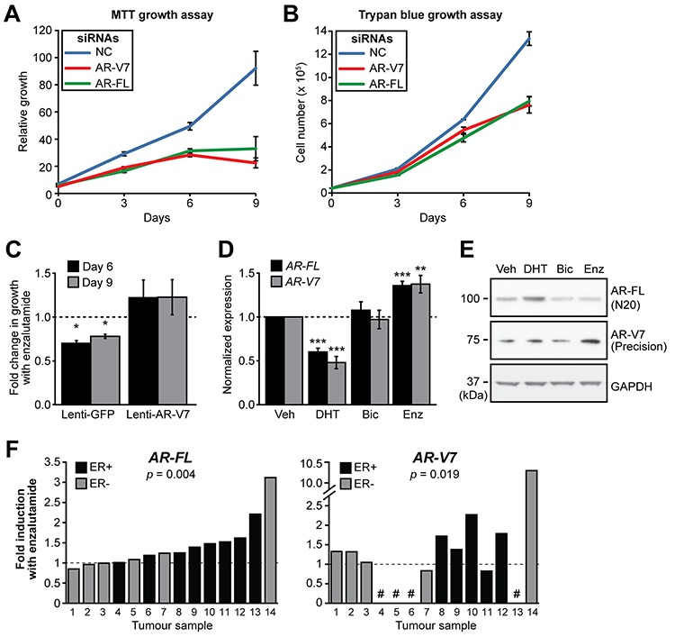 AR-V7 regulates the growth of MDA-MB-453 cells and response to enzalutamide A–B. MDA-MB-453 cells were transfected with siRNAs specific for AR-FL and AR-V7 or a control siRNA and growth was assessed in androgen-replete media using MTT (A) and Trypan Blue (B) growth assays. Values are the mean (±SEM) of 3 biological replicates; results are representative of three independent experiments. C. MDA-MB-453 cells were transduced with lentivirus designed to overexpress AR-V7 or GFP (negative control) and cell growth assessed using Crystal Violet assays in response to the enzalutamide. The relative change in growth compared to vehicle control is shown at 6 and 9 days. Values are the mean (±SEM) of 6 biological replicates comprising two independent experiments. D. Treatment with AR antagonists induces AR gene transcription in MDA-MB-453 cells. Cells were grown in androgen depleted media and treated with 10 nM DHT, 10 μM bicalutamide, 10 μM enzalutamide or vehicle control for 24 h. AR-FL and AR-V7 mRNA was measured by qRT-PCR. Values are normalized to GAPDH and represent the mean (± SEM) of triplicate samples, with vehicle control treatment set to 1. Results are representative of three independent experiments. E. Matched samples from (D) were analyzed by Western blotting using AR-V7 (Precision Biosciences), AR (N20) and GAPDH (loading control) antibodies. F. Human breast tumor explants were cultured with vehicle (DMSO) or enzalutamide (50 μM) for 48 h. AR-FL and AR-V7 transcripts were measured by qRT-PCR and normalized to GAPDH . Values are expressed as fold-change relative to DMSO for each individual tumor. Statistically significant differences compared to the control treatment were assessed using a Wilcoxon signed rank test; p values are shown. Four of the tumors did not express AR-V7 (shown by a # symbol).