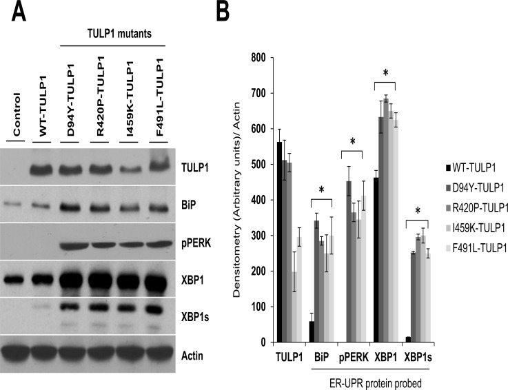 Induction of the ER-UPR complex in cells expressing mutant TULP1. (A) Western blot analysis using antibodies against BiP, phosphorylated PERK (pPERK), <t>XBP1</t> and XBP1s, showed induction of UPR stress proteins in cells expressing mutant forms of TULP1. Actin was used a protein loading control. Western blot experiments were repeated twice. (B) Quantification of ER-stress protein markers was performed using densitometry in mutant TULP1 expressing cells compared to WT-TULP1 expressing cells. The relative band intensity of each protein was normalized to Actin. Data is presented as arbitrary units from two separate western blot densitometry analyses. Statistical significance was calculated using the two-tailed Student's t -test. * = p