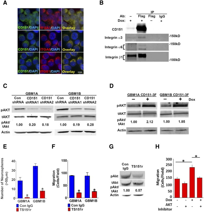 CD151:integrin complexes regulate neurosphere cell self-renewal, migration, and Akt activation. (A) GBM1A neurosphere cells collected by cytospin were co-immunostained with antibodies against CD151 and either integrin α3, integrin α6, or integrin β1 (bar = 10μm). CD151 distribution overlaps with the integrins. (B) GBM1A 3F-CD151 cells were treated ± Dox for 48 hours. Brij-O1 collected protein lysates subjected to immunoprecipitation with anti-FLAG specifically precipitated 3F-CD151, integrin α3, integrin α6, and integrin β1 proteins. (C) GBM neurosphere lines GBM1A and GBM1B were infected with lentivirus coding for control shRNA, CD151 shRNA 1, or CD151 shRNA 2. Total cell lysates were extracted and analyzed by immunoblot using antibodies against S 473 phosphorylated Akt (pAkt) and total Akt (tAKT). CD151 inhibition decreased Akt phosphorylation. (D) GBM1A 3F-CD151 and GBM1B 3F-CD151 neurospheres were treated ± Dox. Whole cell extracts were analyzed by immunoblot for pAkt and tAkt. Forced CD151 expression promoted Akt phosphorylation. (E–G) GBM1A and GBM1B cells were treated with anti-CD151 antibody TS151r, which blocks integrin α3 and α6 binding. Isotype IgG was used as control. (E) Equal numbers of viable cells were cultured in 48-well plates with TS151r antibody (or IgG control) for 14 days to form neurospheres. Neurospheres ( > 50 μm diameter) were counted. Neurosphere formation was inhibited by TS151r. (F) Neurosphere cells were plated on laminin-coated Transwell membranes. Migration was evaluated 8 hours later by counting DAPI-stained cells. Cells per field were counted. TS151r inhibited migration on laminin. (G) Whole cell lysates were collected and subjected to immunoblot analysis for pAkt and tAkt. CD151 knockdown inhibits Akt phosphorylation. (H) GBM1A 3F-CD151 cells were treated ± Akt inhibitor MK-2206 (5 μM, Selleckhem, Houston TX) for 1 hour followed by ± Dox for 24 hours to induce 3F-CD151. Neurosphere cells were plated on laminin-coated Transwell membranes. Migration was evaluated 8 hours later by counting DAPI-stained cells. Cells per field were counted. Akt inhibition abrogated CD151-induced cell migration. * P
