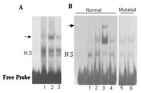Electrophoretic mobility shift assays show the binding of c-myc protein to the c-myc/max sequence. A : Nuclear extract prepared from HEK293 cells transfected either with pcDNA3.1 (lane 1) or pcDNA3.1- PTTG (lane 2) and [ 32 P]-labeled p53 gene promoter sequence carrying a normal c-myc/max binding site. Addition of a 20-fold molar excess of specific unlabeled DNA resulted in almost complete disappearance of the DNA-protein complex (lane 3). An arrow indicates the specific DNA-protein complex. B : Nuclear extracts prepared from HEK293 cells transfected either with pcDNA3.1 (lane 1) or pcDNA3.1- PTTG (lane 2) and [ 32 P]-labeled p53 promoter sequence carrying a normal c-myc/max binding site. Addition of antibody directed against the N-terminal of c-myc resulted in a supershift (lane 3, indicated by an arrow) whereas no supershift was obtained when the [ 32 P]-labeled-D-172/-89 c-myc sequence was used as a probe (lane 5). Addition of antibodies directed against the C-terminal of c-myc did not result in supershift (lanes 4 6) when either of the probes was used in the binding reaction indicating that C-terminal of c-myc is not assessable. N.S indicates non-specific complex.