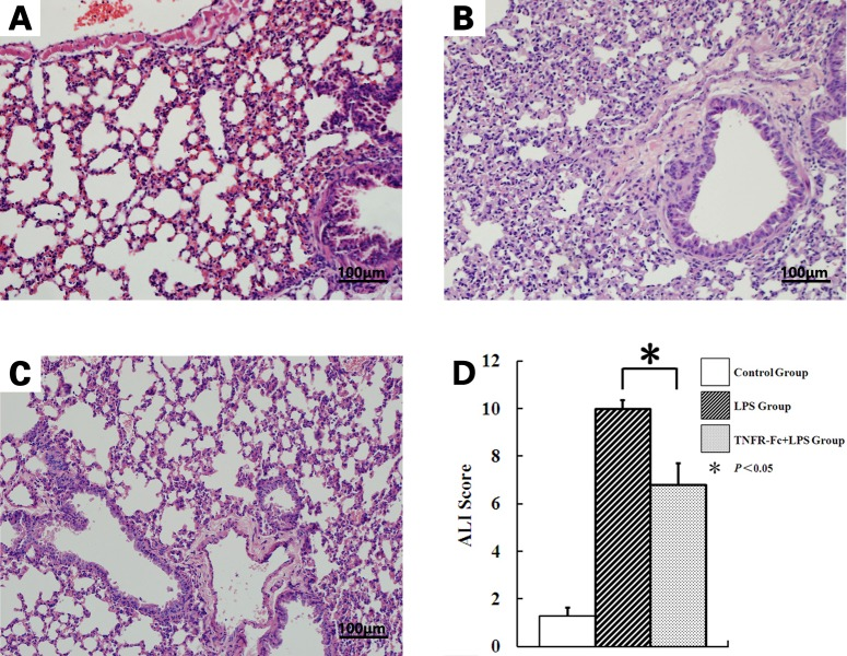 TNFR-Fc attenuates lung destruction induced by LPS injection (x200). Representative hematoxylin and eosin-stained preparations of lung tissue from mice 2 h after LPS/saline treatment (N = 3 in each group). (A) Saline-treated mice display regular lung histology. (B) LPS-treated mice displayed typical signs of congestion and disruption of alveolar architecture. (C) TNFR-Fc-pretreated ALI mice were largely protected from these alterations. (D)Histological assessment of the effect TNFR-Fc on LPS-induced lung inflammation and injury (N = 3 in each group). TNFR-Fc pretreatment decreased the ALI score in ALI mice.