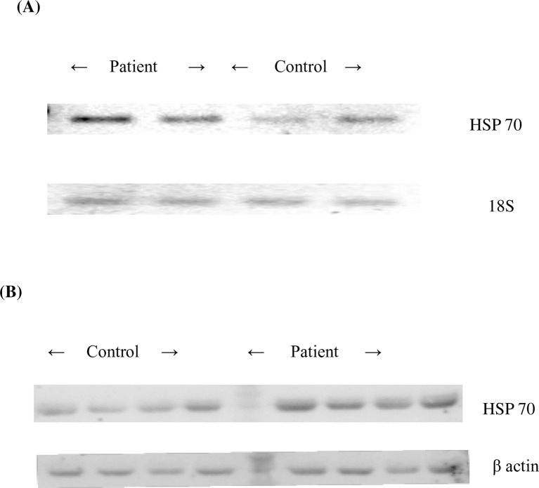 Semi-quantitative gel picture and Western blot analysis of Heat shock protein70. (A) represents the semi-quantitative analysis of heat shock protein70 (HSP70) gene and 18S rRNA (Housekeeping gene) in controls and patients respectively.(B) represents the western blots of heat shock protein70 (HSP70) and β-actin protein in controls and patients respectively.