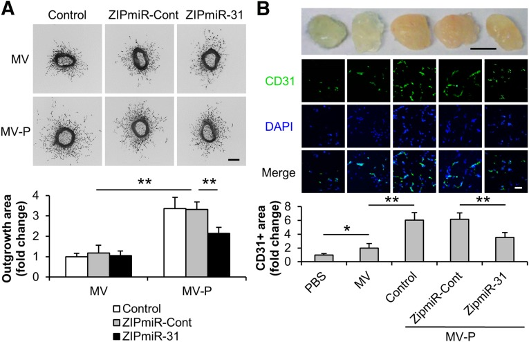 miR-31 contributes to the proangiogenesis induced by MV-P ex vivo and in vivo. Adipose-derived stem cells (ASCs) were transduced with lentiviral ZipmiR-31 to silence miR-31. ASCs untransduced (control) or transduced with a ZipmiR-Cont were used as controls. MV and MV-P were obtained from these ASCs. (A): Mouse aortic rings were collected and treated with various MVs, as indicated, for 5 days ( n = 8). Representative images (upper panel) and a statistical analysis of the outgrowth area of aortic rings (lower panel) for each treatment condition are displayed. The outgrowth area of aortic rings treated with MV from untransduced cells was set to 1. Scale bar = 100 µm. (B): PBS, MV, or MV-P was mixed with Matrigel and injected subcutaneously into the flanks of the nude mice. The Matrigel plugs were harvested 2 weeks postimplantation ( n = 6). Upper panel: Representative pictures of the plugs are exhibited. Scale bar = 5 mm. Middle panel: The sections of the plugs were subject to immunohistochemistry analysis for CD31, an endothelial cell marker, and counterstained with DAPI. Scale bar = 100 µm. Lower panel: Quantification of the CD31-positive area was performed. The positive area in the slide from the plugs containing PBS was set to 1. ∗, p