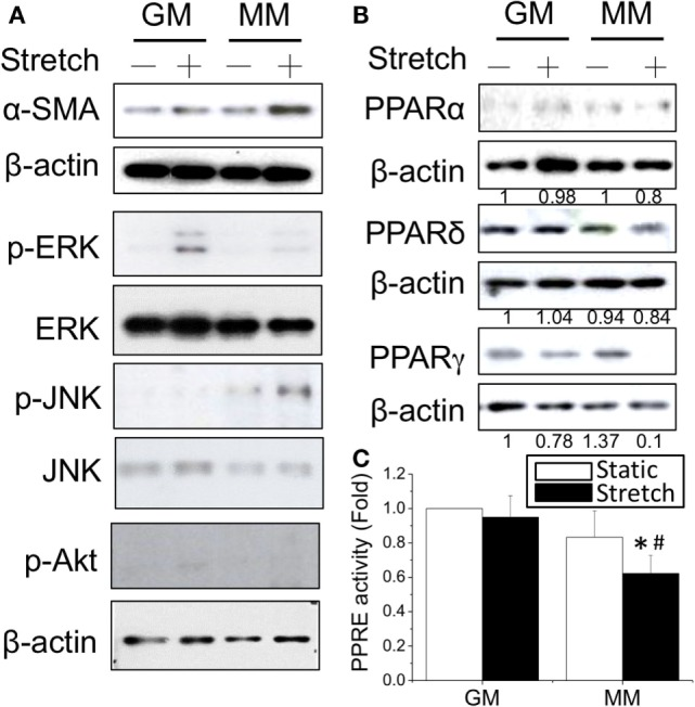 Application of cyclic stretch (10% strain at 1 Hz for 1 h) in MM with further induced myogenesis as indicated by increased α-SMA expression (A) . The phosphorylation of JNK was induced by applying stretch in MM, whereas ERK phosphorylation was observed when stretch was applied in GM. A decrease in PPARγ protein expression was also found during stretch-induced myogenesis in MM (B) . The number below each lane indicates the quantified fold change with normalized to GM static condition and its individual β-actin. A further decrease of PPRE promoter activity was detected when applying cyclic stretch (C) . *Significant difference compared with GM ( p