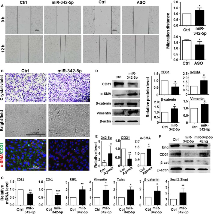 miR‐342‐5p promoted endothelial–mesenchymal transition in vitro. A, HUVEC s were transfected with miR‐342‐5p, miR‐342‐5p ASO , or control. Cell migration was determined 24 hours after the transfection using a scratch assay. B, HUVEC s were transfected with miR‐342‐5p or control: (upper) Cell migration was determined 24 hours after the transfection using a Transwell assay; (middle and lower) cells were observed under bright field or fluorescence microscope after staining with anti–α‐ SMA and anti‐ CD 31. C, HUVEC s were transfected with miR‐342‐5p or control. The expression of CD 31, ZO ‐1, FSP 1, vimentin, Twist, <t>β‐catenin,</t> and Snail2 was determined 72 hours after transfection using qRT ‐ PCR . D, HUVEC s were transfected with miR‐342‐5p or control. The expression of CD 31, α‐ SMA , β‐catenin, and vimentin was determined 48 hours after the transfection using Western blot. E, Healthy pups at postnatal day 3 were injected intravitreally with miR‐342‐5p agomir. The level of miR‐342‐5p, CD 31, and α‐ SMA was determined on postnatal day 7 using qRT ‐ PCR . F, HUVEC s were transfected with control, miR‐342‐5p, or miR‐342‐5p plus endoglin. The expression of endoglin, CD 31, and β‐catenin was determined 72 hours after transfection with Western blot. Bars indicate mean± SD (n=5), * P