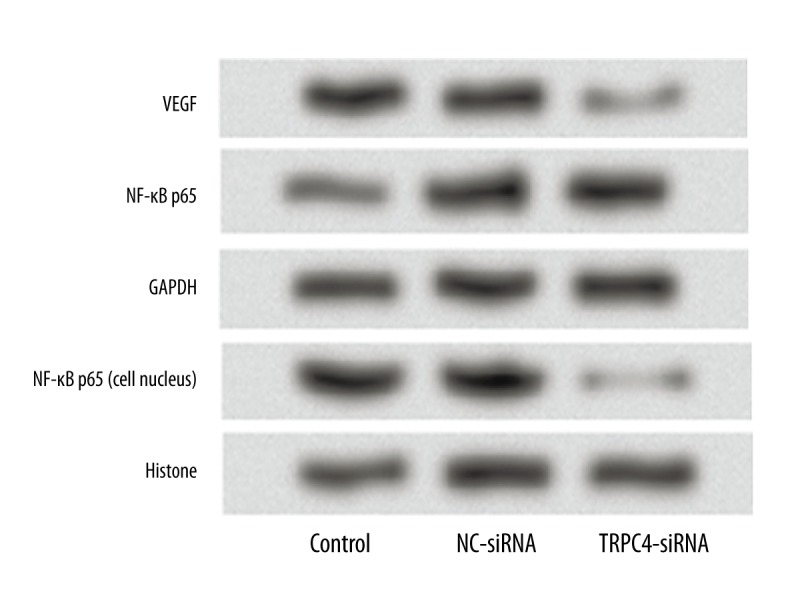Silencing effect of TRPC4 on expression of <t>VEGF</t> and NF-κB <t>p65.</t> The expression levels of VEGF and NF-κB p65 were determined to examine the underlying molecular mechanism. TRPC4 – transient receptor potential channel 4; siRNA – small interfering RNA; NC – negative control; VEGF – vascular endothelial growth factor.