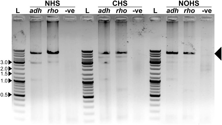 Overlapping PCR result demonstrating the amplification of the full-length vector with the gene inserted. The amplified product is marked with large arrow. L represents the DNA ladder; five bands are marked in kbp. '-ve' represents the negative control that lacked the insert during overlapping PCR reaction. The final product is seen only in those reactions that had the gene of interest. Although other DNA bands are also seen on the gel, they were not identified and, possibly, did not interfere in our experiment.