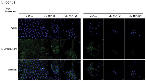 LRIG1 knockdown accelerates EMT of human mammary epithelial cells (A) Western blot analysis of total cell lysates collected from stable pooled clones of HMLE-Twist-ER cells expressing control shRNA (shCon) or LRIG1-targeted shRNAs (shLRIG1# 1 and shLRIG1#2). Cell lysates were prepared pre-Twist induction (Day 0) and post-Twist induction (Days 3, 6, 9, 13, 16). Lysates were blotted as indicated with Actin as a loading control. (B) Images (10x objective) of HMLE-Twist-ER-shCon and HMLE-Twist-ER-shLRIG1#1 and shLRIG1#2 cells pre-Twist induction (Day 0) and post-Twist induction (Days 3, 6, 9, 13, 16). Scale bar = 20 μm. (C) Confocal immunofluorescence analysis of HMLE-Twist-ER-shCon and HMLE-Twist-ER-shLRIG1#1 and shLRIG1#2 cells pre-Twist induction (Day 0) and post-Twist induction (Days 7 and 13). Staining for Vimentin and E-cadherin, as shown. All data are representative of at least 3 independent experiments. Scale bar = 20 μm.