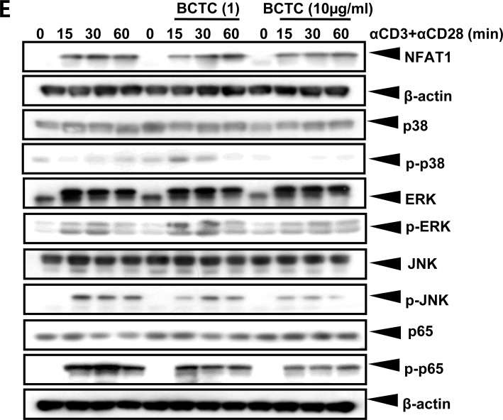 Expression of TRPV1 and its regulation of cytokine production and T cell receptor signaling in CD4 + T lymphocytes A. The expression of TRPV1 protein in the CD4 + T cells was analyzed by FACS and confocal microscopic analyses. B. Protein concentrations of the cytokines IL-4, IL-5, IL-6, IL-10, IL-17, and IFN-γ secreted by CD4 + T cells isolated from TRPV1 (+/+) and TRPV1 (−/−) mice splenocytes after stimulation with αCD3/CD28. C. The immunoblotting results of T cell recptor signaling pathways in CD4 + T cells isolated from TRPV1 (+/+) and TRPV1 (−/−) mice. Phospho-p65 represents NF-κB activity and phospho-p38, phospho-ERK and phospho-JNK represents MAPK pathway. D. The secreted protein concentrations of the cytokines IL-4, IL-5, IL-6, IL-10, IL-17, and IFN-γ in the culture media of human Jurkat T cells pre-incubated with BCTC after stimulation with αCD3/CD28 were determined by ELISA. E. T cell receptor signaling pathways in human Jurkat T cells with or without preincubation of TRPV1 inhibitor, BCTC. TCR was activated by anti-CD3/CD28 and two different concentration of BCTC was used. The statistical P values are presented as * ( P