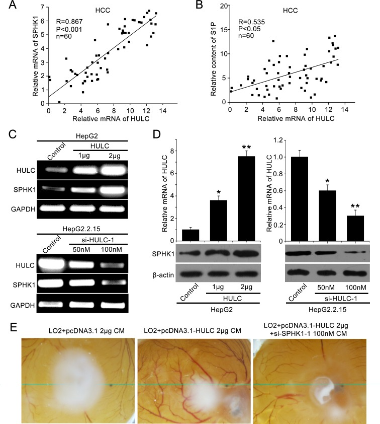 HULC contributes to angiogenesis in liver cancer by up-regulating SPHK1 A. The correlation between SPHK1 mRNA levels and HULC mRNA levels was detected by qRT-PCR in 60 HCC tissues ( P